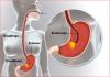 fibroscopie
